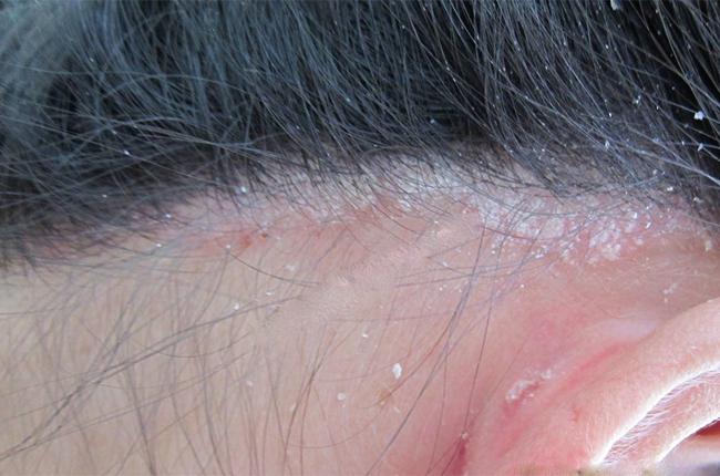 Vẩy nến da đầu - Spa gội đầu & dưỡng tóc thảo dược Cỏ Thơm